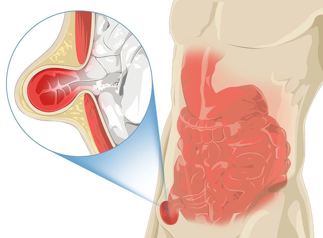 Chirurgie digestive, hernie inguinale à Paris 08 avec le Dr Servajean