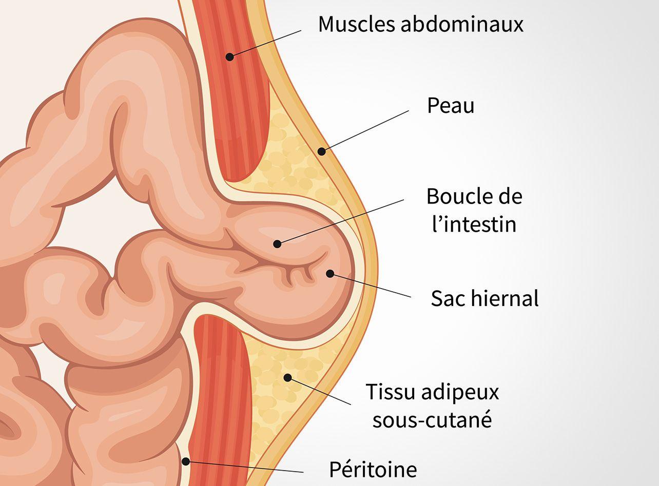 Traitement des hernies ombilicales et hernies de la ligne blanche à Paris 08 avec le Dr Servajean
