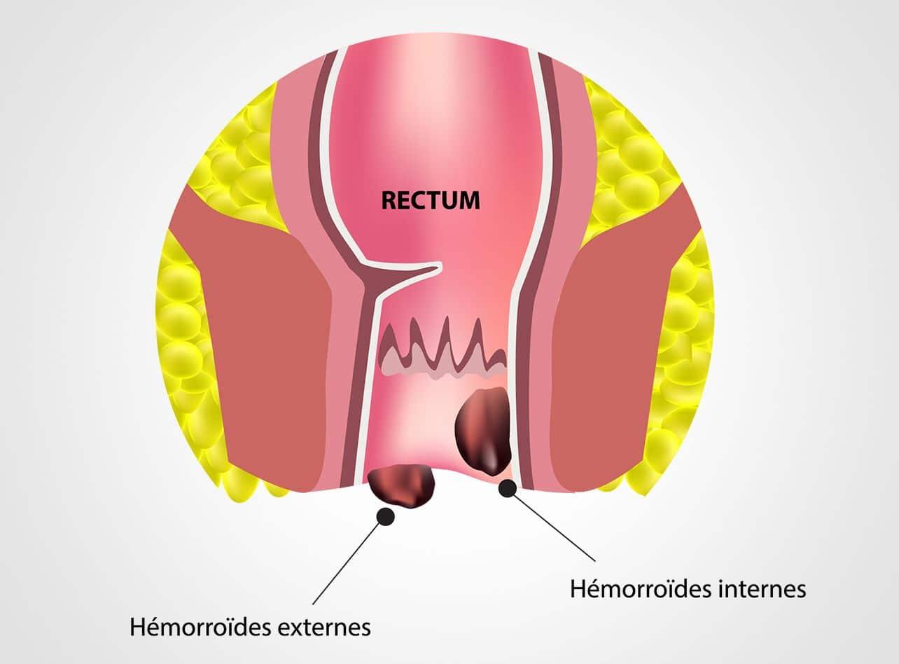 Pathologie d'hémorroïdes à Paris 08 avec le Dr Servajean