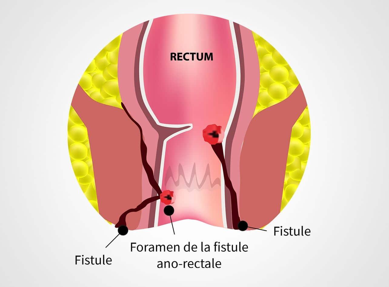 Pathologie des abcès et des fistules anales à Paris 08 avec le Dr Servajean