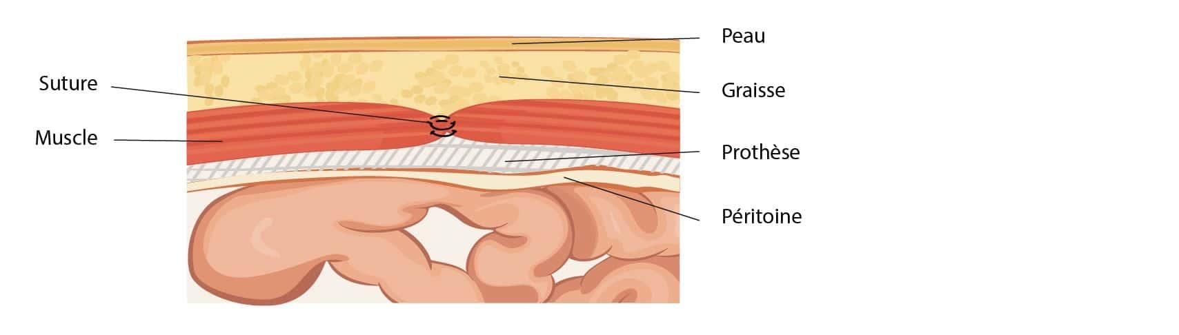 Traitement chirurgical des hernies inguinales à Paris 08 avec le Dr Servajean