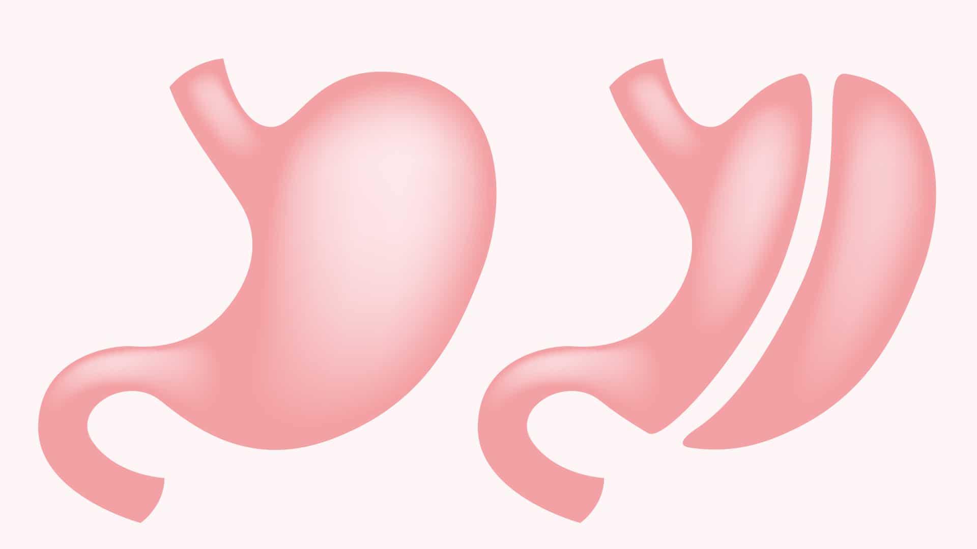 La sleeve gastrectomie : Quelles sont les conditions pour la faire - Dr Stéphane Servajean Paris