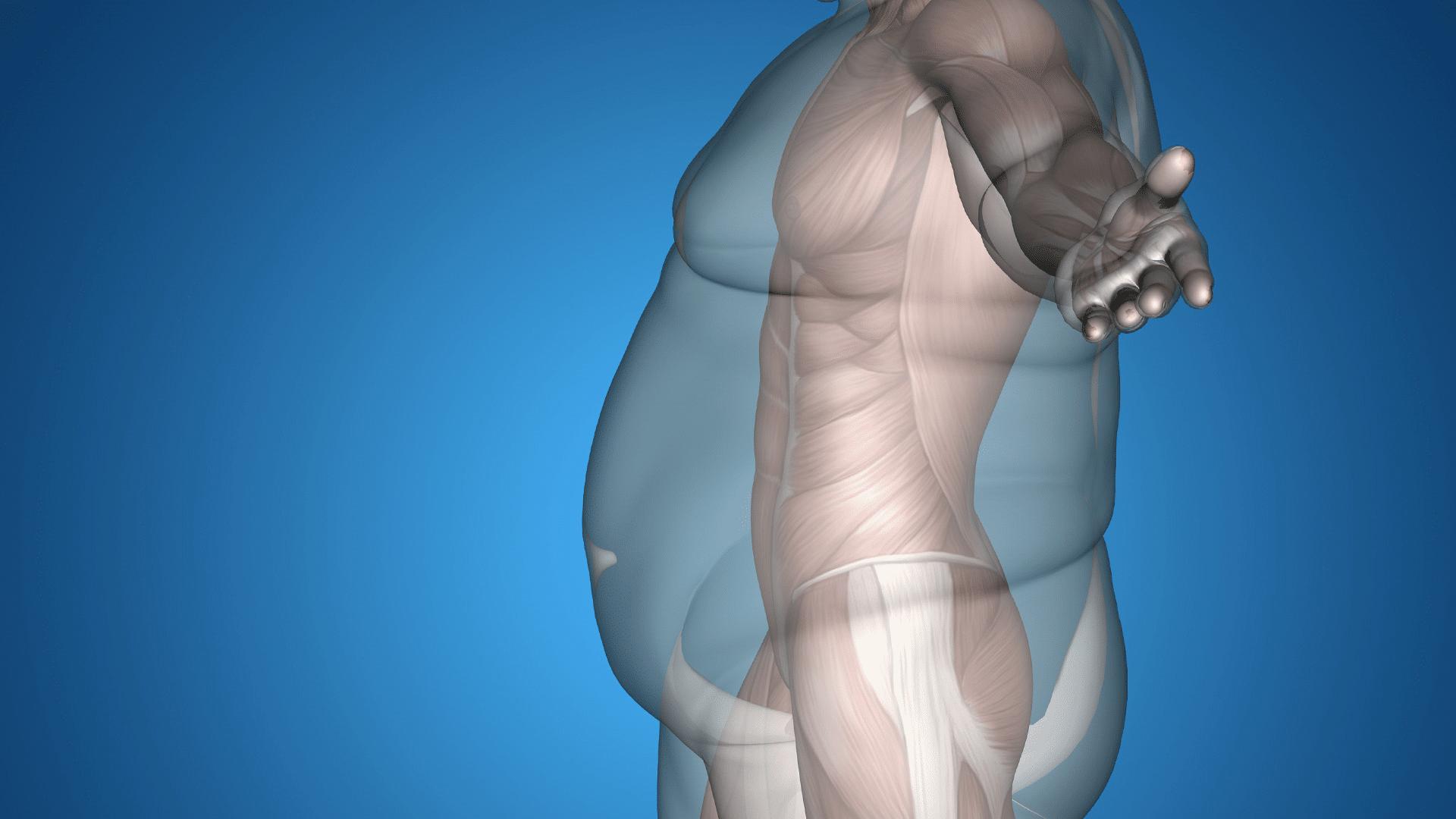 Causes obésité Dr Servajean