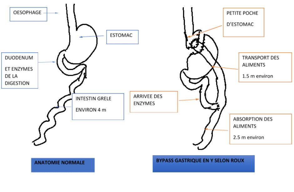 La dilatation de l'estomac apres un bypass gastrique